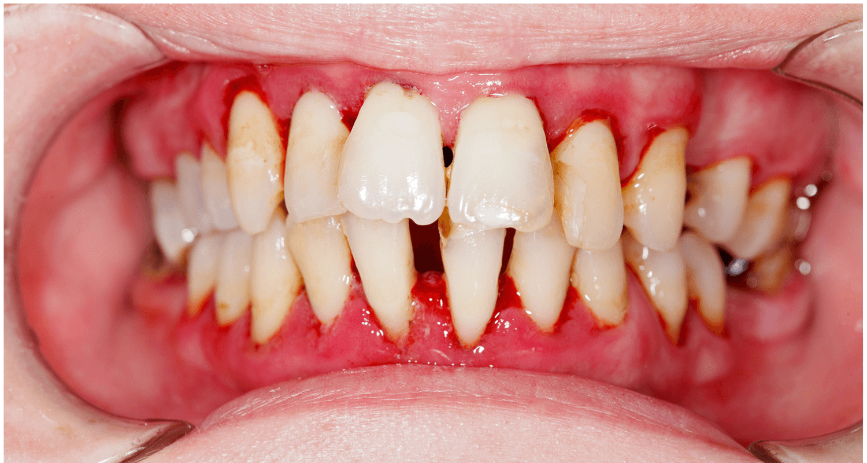 gingivite-parodonte-poche-parodontale-que-faire-jet-dentaire.info