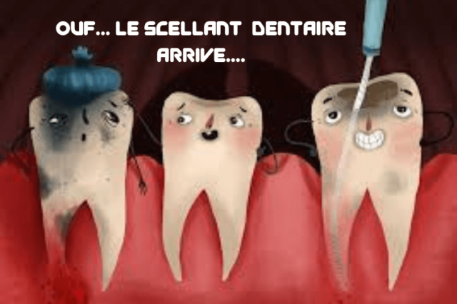 Les scellants dentaires: qu'est-ce-que c'est?
