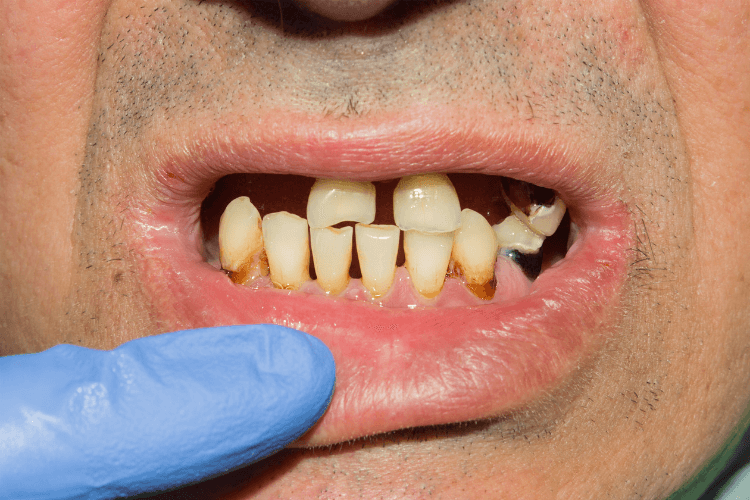 dent-qui-bouge-adulte-que-faire-implant-dentaire-bridge-coll-comment-cacher-une-dent-manquante-dechaussement-dentaire-douleur-medicament-contre-dechaussement-des-dents