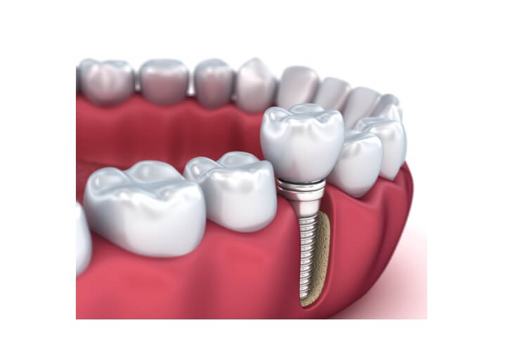 dent-devitalisee-douleur-dent-devitalisee-cassee-dent-morte-symptome-dent-necrosee-douloureuse-dent-necrosee-odeur