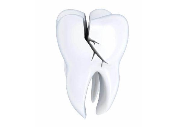 Dent fissurée: Les causes et les solutions