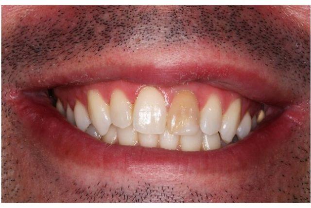 Identifier et traiter une dent morte