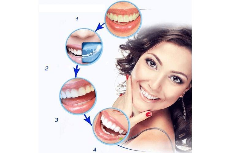 kit-blanchiment-dentaire-professionnel-kit-blanchiment-dentaire-avis-kit-blanchiment-dentaire-bbryance-kit-blanchiment-dentaire-white-care